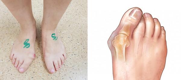 Iškrypusio pėdos kauliuko operacija (vad. hallux valgus